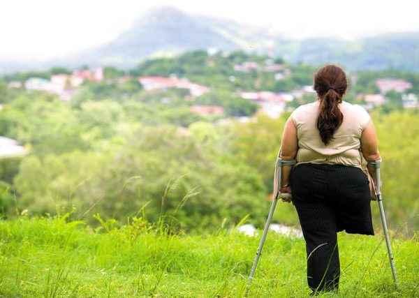 Dorisel Martínez Urbina,de 41 años, tenía 13 años cuando recibió el impacto del proyectil que le arrancó de un tajo su pierna derecha.Foto La Prensa / Yader Flores